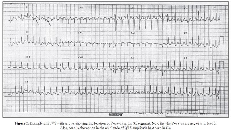 Paroxysmal Narrow Qrs Tachycardia